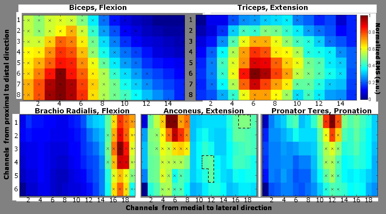 Segmentation of an EMG map
